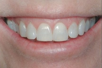 photo of front teeth after teeth whitening