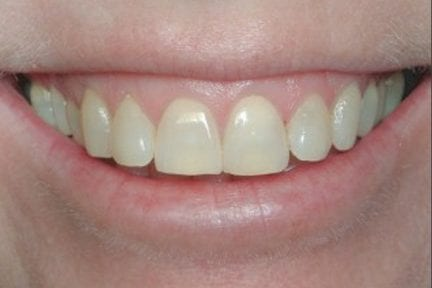 photo of front teeth before teeth whitening