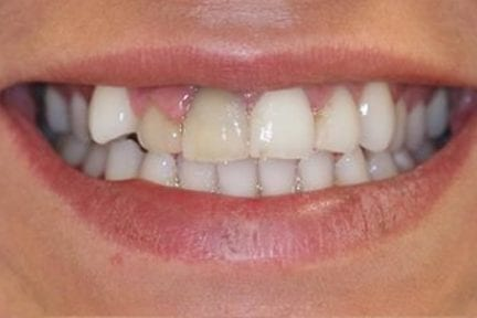 photo of front teeth before crown placement