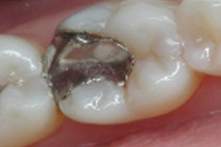 close up photo of tooth before filling